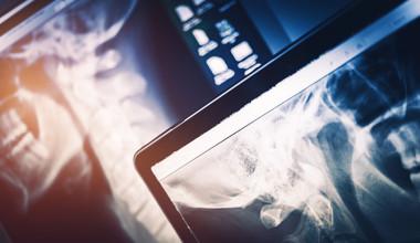 Radiography (X-Ray)