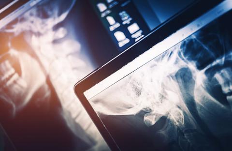 Rezonans w ortopedii